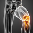 Knee-Joint-pain-bone-prp-lysate-injections-hyderabad-india-prp-lysate-dr.leroy-rebello-prp-lysate-in-india