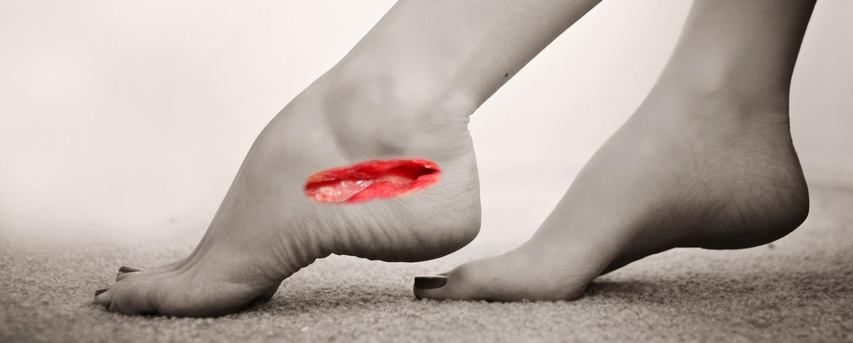 chronic wounds healing